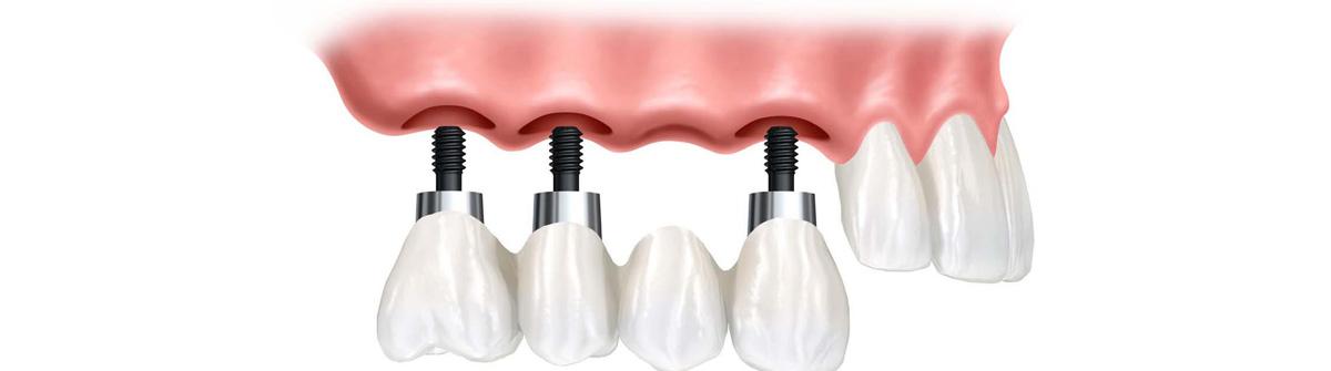 Οδοντικό Εμφύτευμα