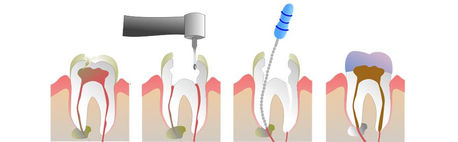Η ενδοδοντική θεραπεία (απονεύρωση) είναι ένα σύνολο εργασιών που πραγματοποιούνται στο εσωτερικό του δοντιού όταν το νεύρο και τα αγγεία αυτού έχουν υποστεί μη αντιστρεπτή βλάβη